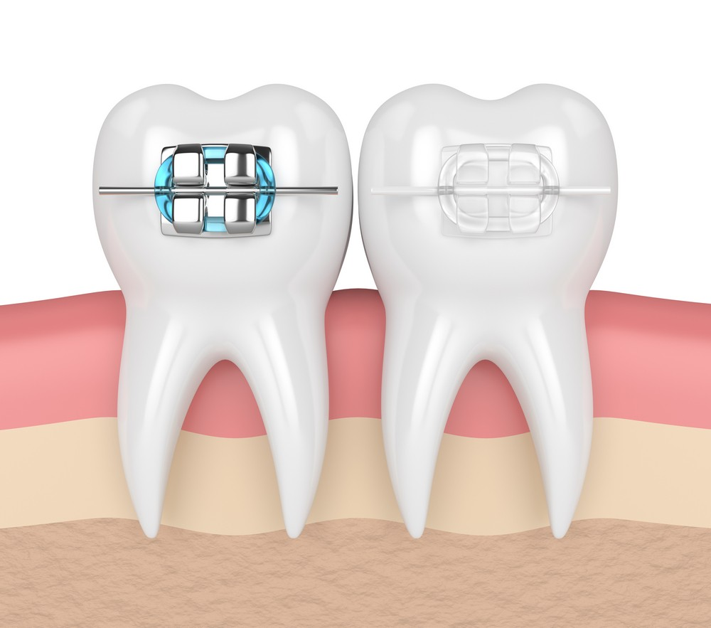ortodontie targoviste, aparat dentar metalic targoviste pret, aparat dentar ceramic targoviste