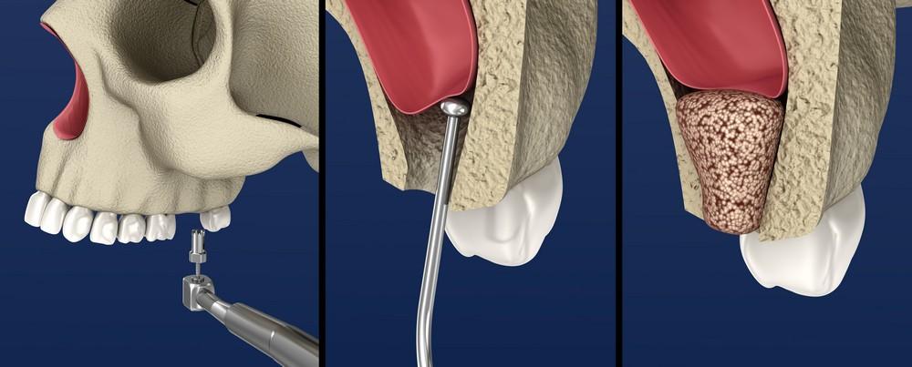 chirurgie dentara targoviste, extractie dentara targoviste, extractie mase minte targoviste pret