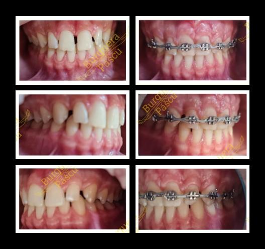 aparat dentar targoviste, clinica stomatologica targoviste, clinica stomatologica RG Dental