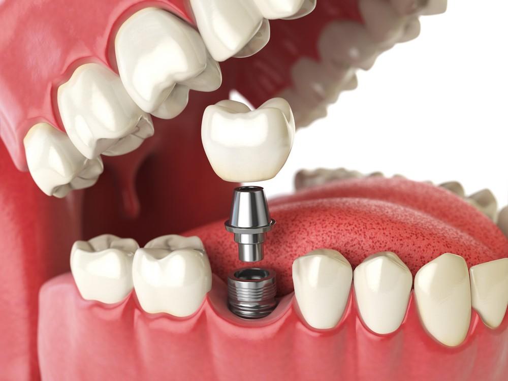 implant dentar targoviste, implantologie targoviste, implant dentar targoviste pret