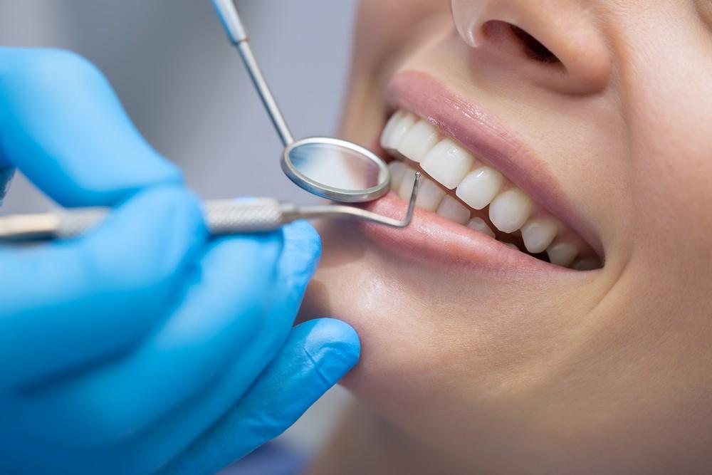 stomatologie targoviste, dentist targoviste, detartraj targoviste, igienizare dentara targoviste