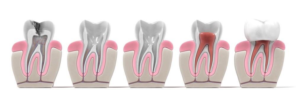 tratament canal targoviste, endodontie targoviste, rg dental targoviste