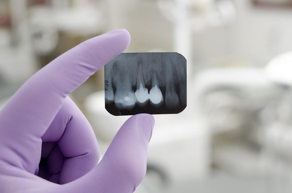 radiologie dentara targoviste, radiografie dentara targoviste pret, radiografie retroalveolara pret