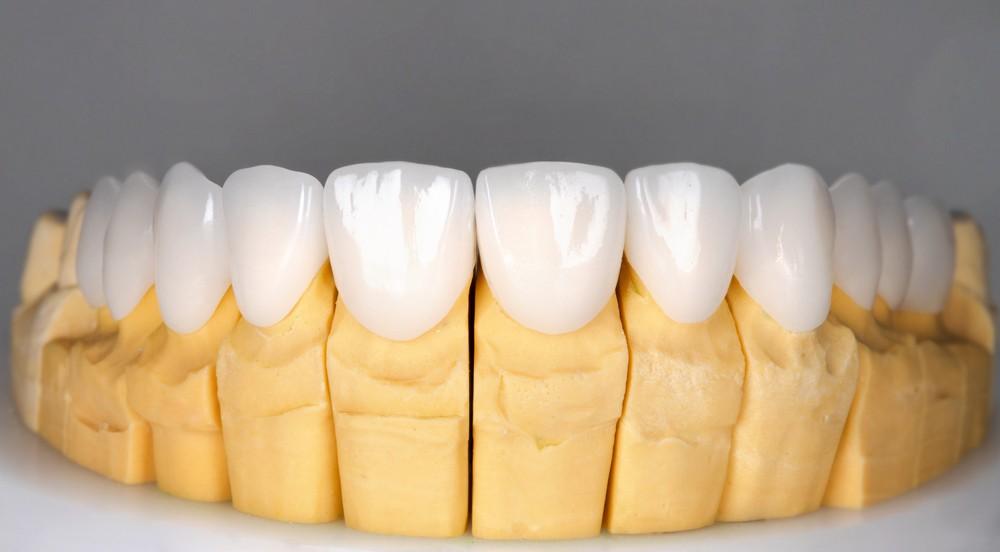 fatete dentare targoviste pret