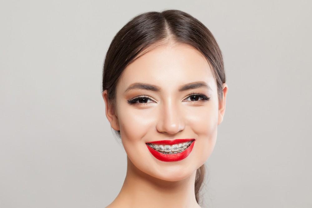 ortodontie targoviste, aparat dentar metalic targoviste, aparat dentar safir targoviste