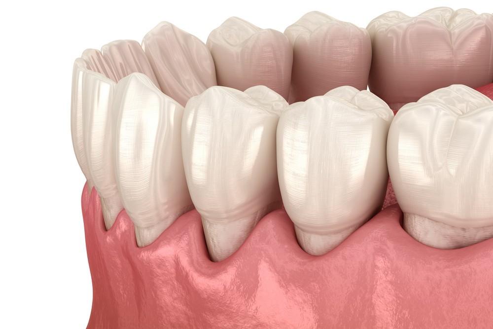 parodontoza targoviste, tratament parodontoza targoviste, rg dental targoviste
